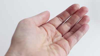 Viruzide Händedesinfektion skinman foam